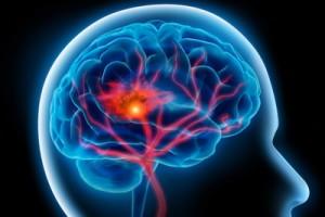 Зона поражения мозга при инсульте