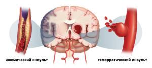 Механизмы инсульта
