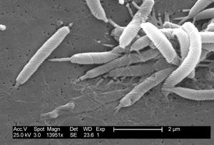 Хелокобактер под электронным микроскопом