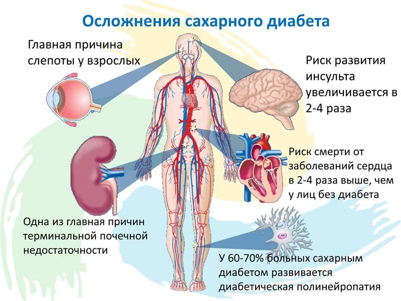 Как лечить последствия сахарного диабета